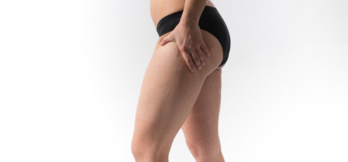Lesión muscular, traumatología deportiva